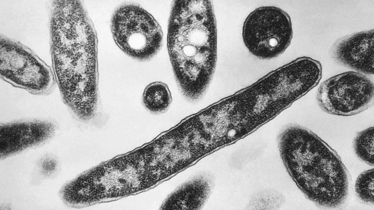 4th Legionnaires' disease death reported in North Carolina